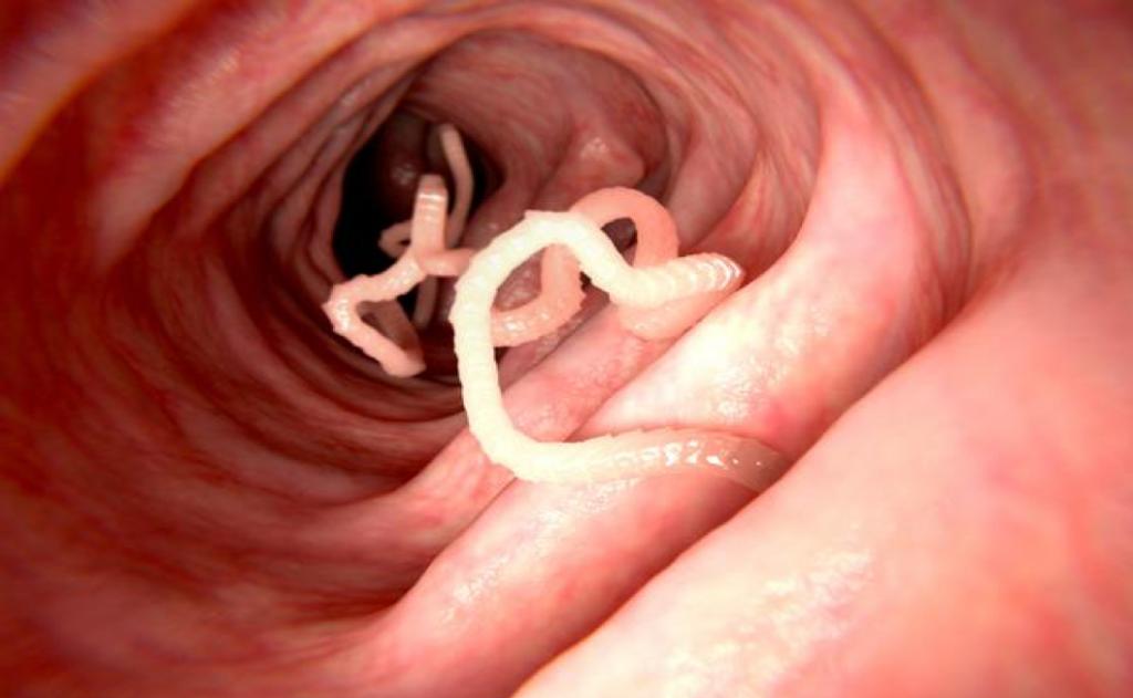 Detox for Human Intestinal Parasites